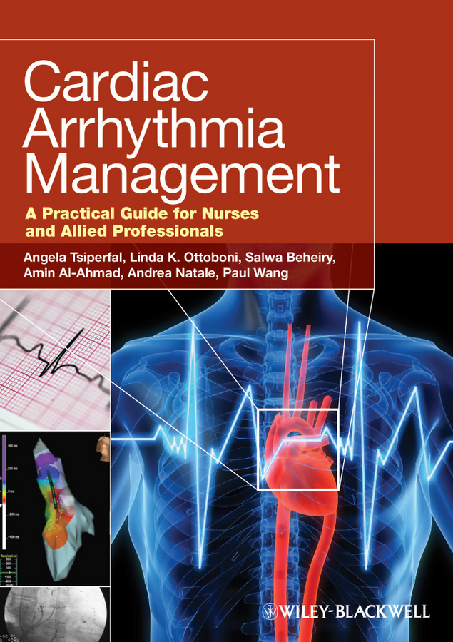 Cardiac Arrhythmia Management. A Practical Guide for Nurses and Allied Professionals