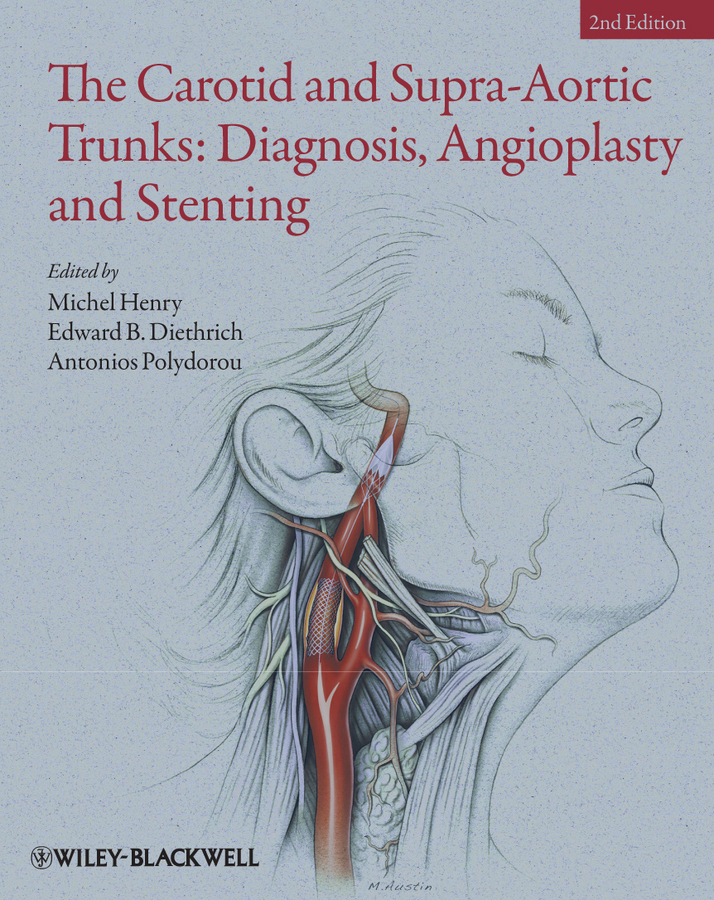 Michel Henry The Carotid and Supra-Aortic Trunks. Diagnosis, Angioplasty and Stenting a new lease of death