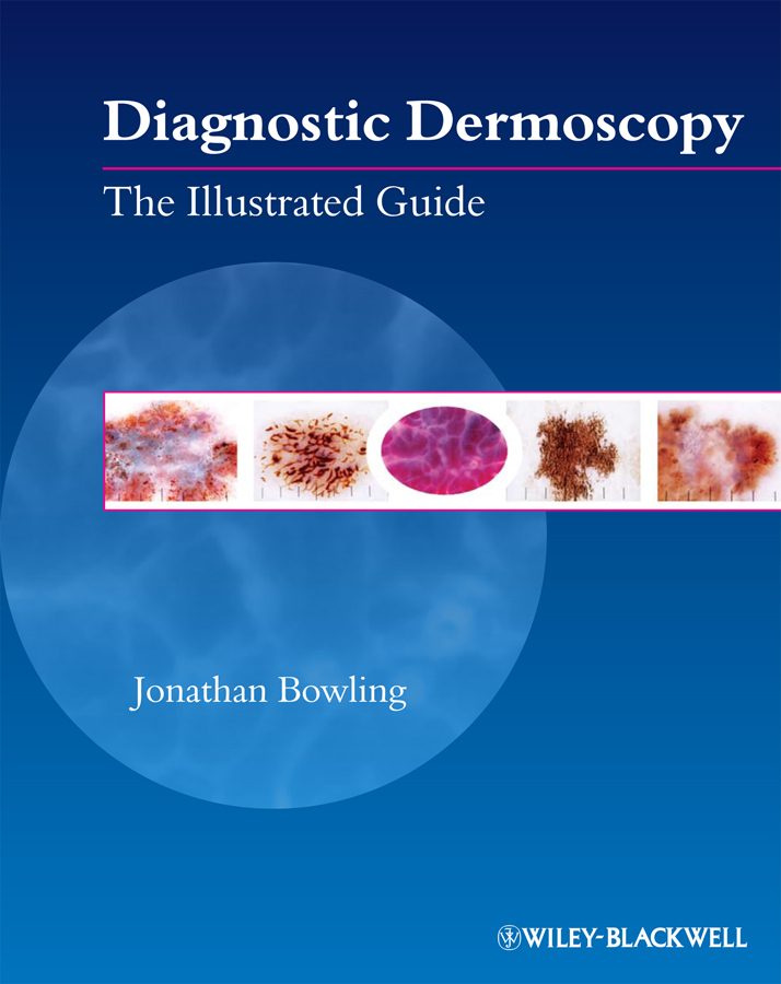 Jonathan Bowling Diagnostic Dermoscopy. The Illustrated Guide jonathan bowling diagnostic dermoscopy the illustrated guide
