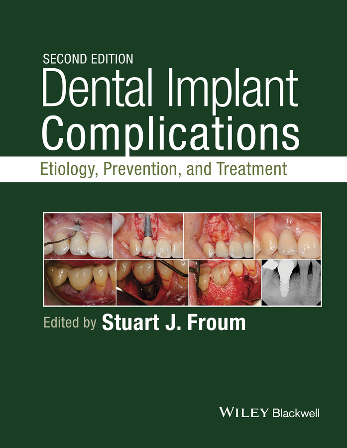 Stuart Froum Dental Implant Complications. Etiology, Prevention, and Treatment все цены