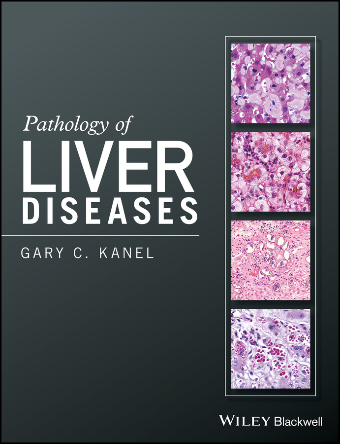 Gary Kanel C. Pathology of Liver Diseases все цены