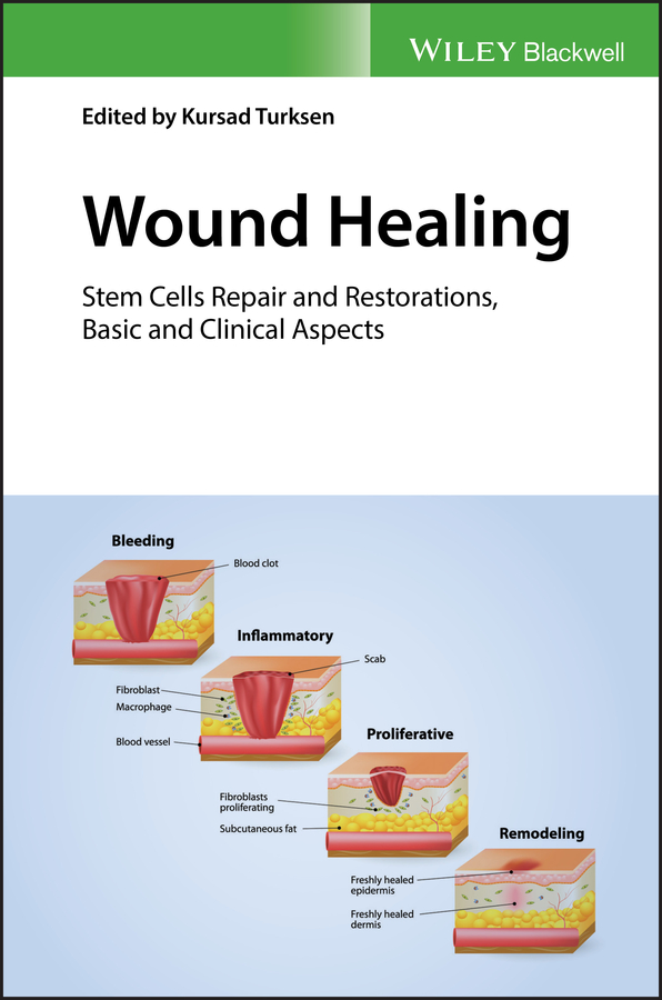 Kursad Turksen Wound Healing. Stem Cells Repair and Restorations, Basic and Clinical Aspects цена в Москве и Питере