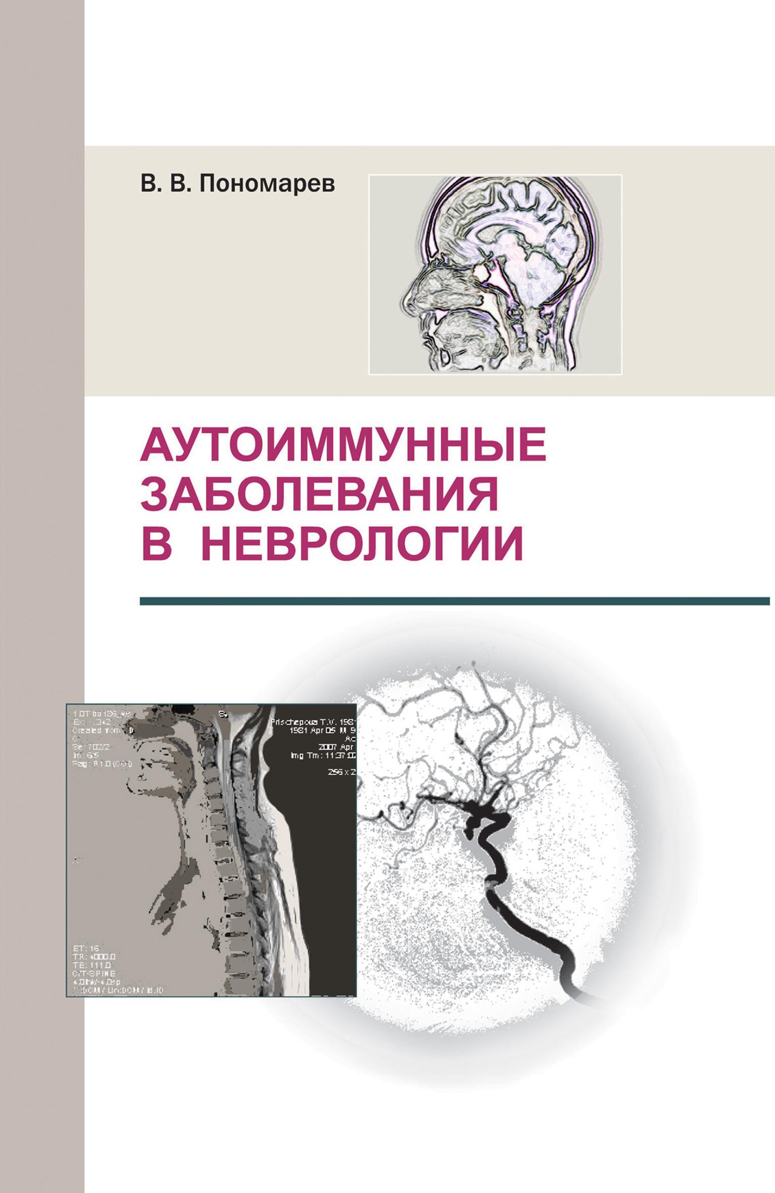 В. В. Пономарев Аутоиммунные заболевания в неврологии хасанова д данилов в рек инсульт современные подходы диагностики лечения и профилактики методические рекомендации