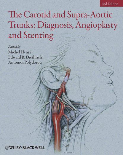 Michel Henry The Carotid and Supra-Aortic Trunks. Diagnosis, Angioplasty and Stenting недорого
