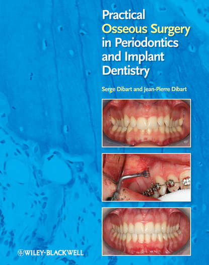 Dibart Jean-Pierre Practical Osseous Surgery in Periodontics and Implant Dentistry bone grafts