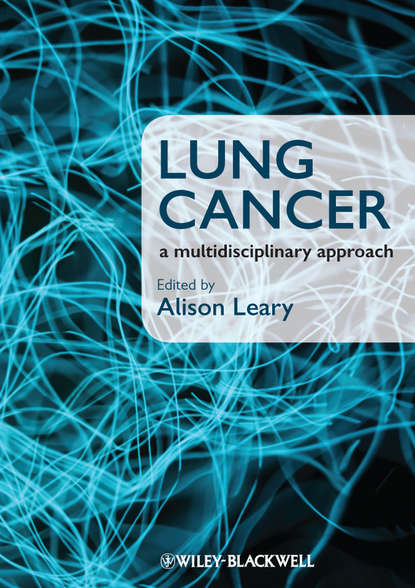 Alison Leary Lung Cancer. A Multidisciplinary Approach jack roth a lung cancer