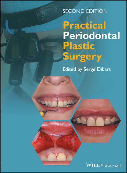 Serge Dibart Practical Periodontal Plastic Surgery the customized of abs plastic moulds