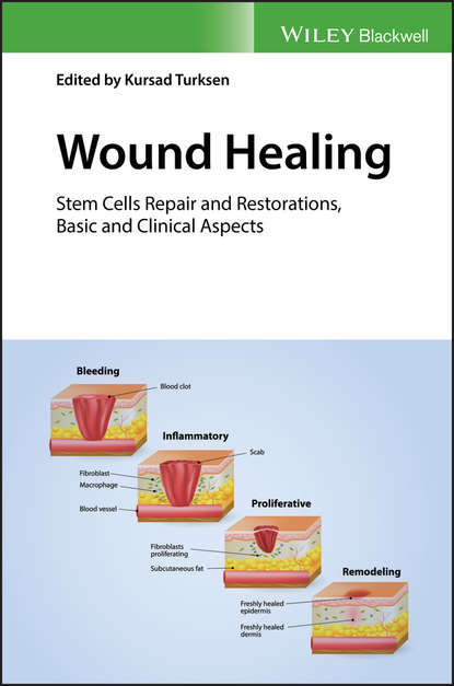 Kursad Turksen Wound Healing. Stem Cells Repair and Restorations, Basic and Clinical Aspects kursad turksen wound healing stem cells repair and restorations basic and clinical aspects