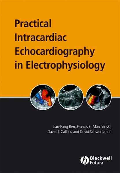 Jian-Fang Ren Practical Intracardiac Echocardiography in Electrophysiology недорого