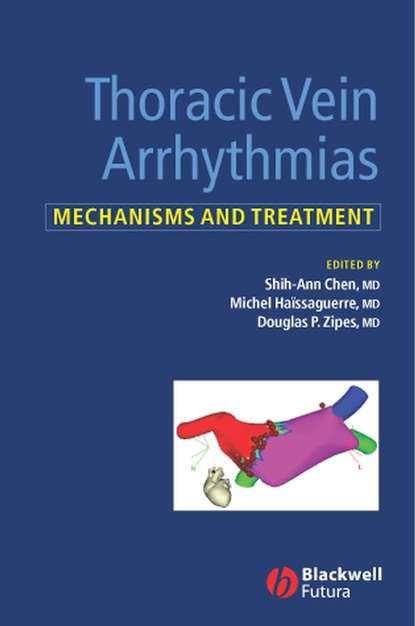 Michel Haissaguerre Thoracic Vein Arrhythmias core topics in thoracic surgery