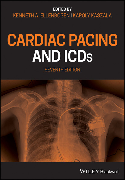 Фото - Группа авторов Cardiac Pacing and ICDs tom kenny the nuts and bolts of cardiac pacing