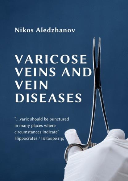 VARICOSE VEINS AND VEIN DISEASES