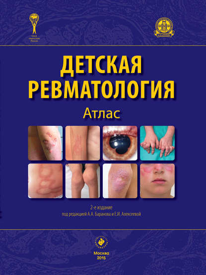 Обложка «Детская ревматология. Атлас»