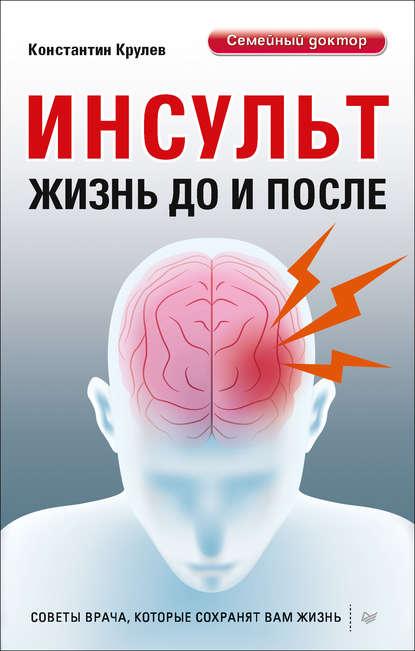 Обложка «Инсульт. Жизнь до и после»