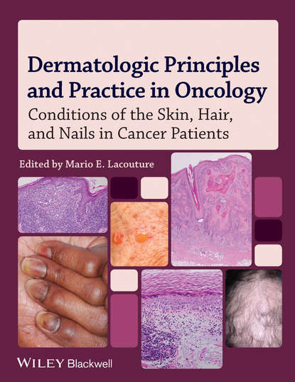 Обложка «Dermatologic Principles and Practice in Oncology. Conditions of the Skin, Hair, and Nails in Cancer Patients»