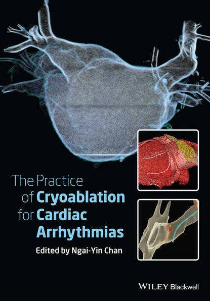 Обложка «The Practice of Catheter Cryoablation for Cardiac Arrhythmias»