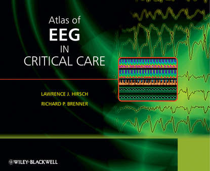 Обложка «Atlas of EEG in Critical Care»