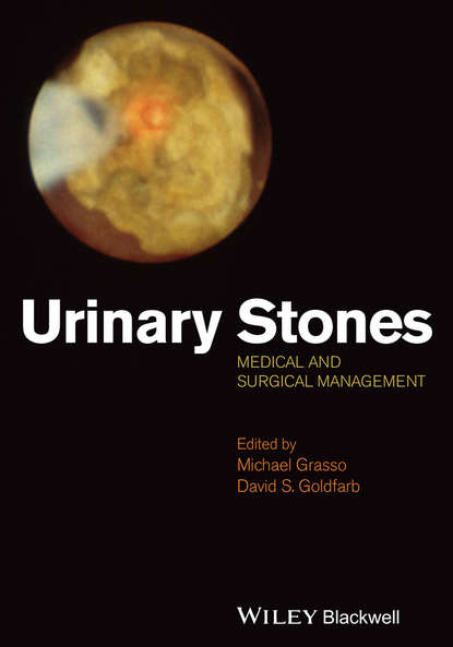 Обложка «Urinary Stones. Medical and Surgical Management»