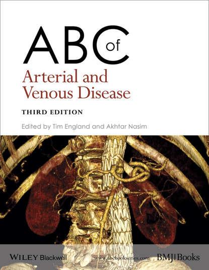 Обложка «ABC of Arterial and Venous Disease»