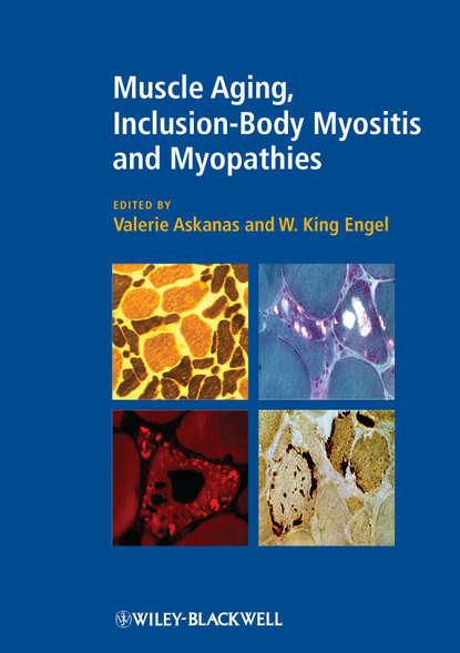 Обложка «Muscle Aging, Inclusion-Body Myositis and Myopathies»