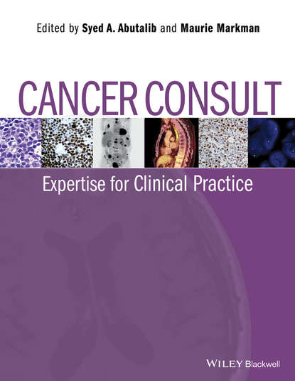 Обложка «Cancer Consult. Expertise for Clinical Practice»