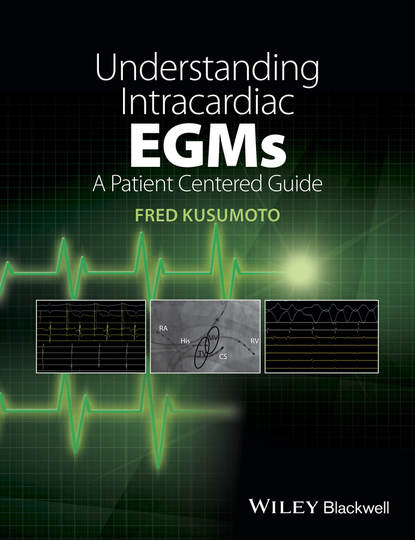 Обложка «Understanding Intracardiac EGMs. A Patient Centered Guide»