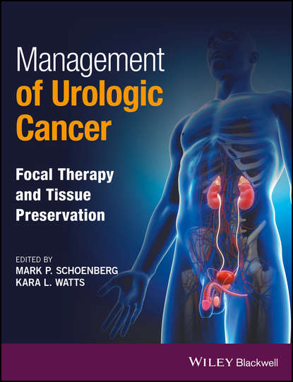 Обложка «Management of Urologic Cancer. Focal Therapy and Tissue Preservation»