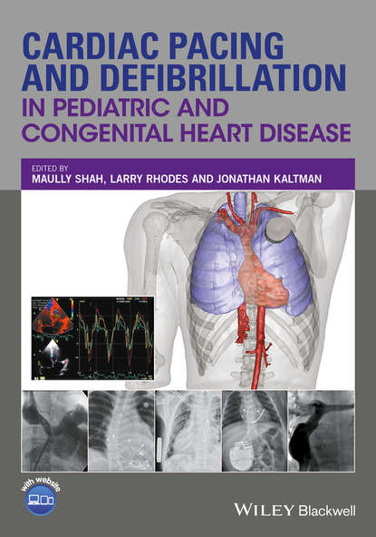 Обложка «Cardiac Pacing and Defibrillation in Pediatric and Congenital Heart Disease»