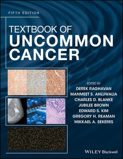 Обложка «Textbook of Uncommon Cancer»