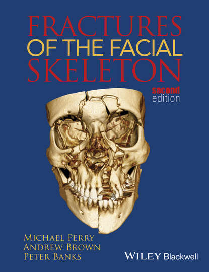 Обложка «Fractures of the Facial Skeleton»