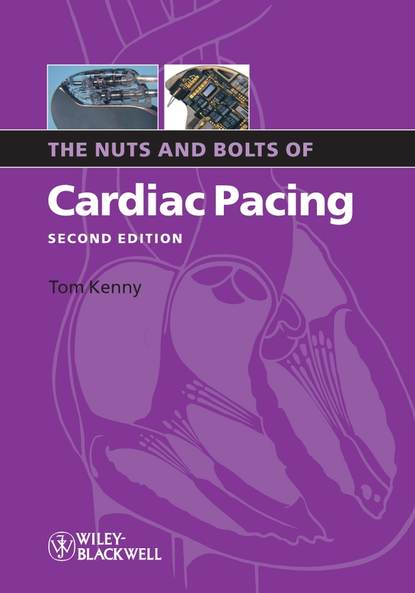 Обложка «The Nuts and Bolts of Cardiac Pacing»